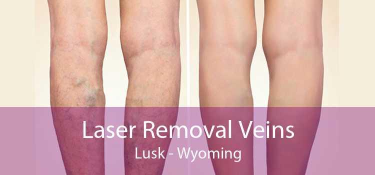 Laser Removal Veins Lusk - Wyoming