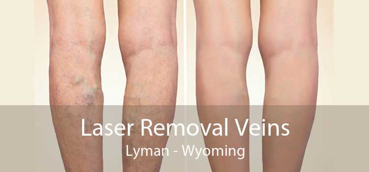 Laser Removal Veins Lyman - Wyoming