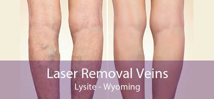 Laser Removal Veins Lysite - Wyoming