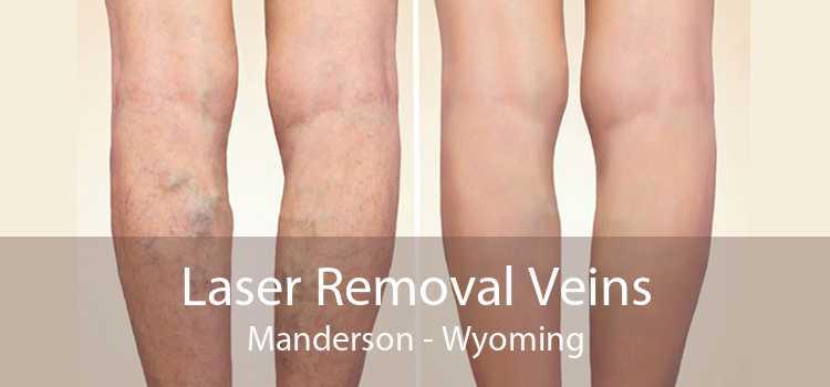 Laser Removal Veins Manderson - Wyoming