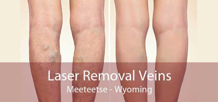 Laser Removal Veins Meeteetse - Wyoming