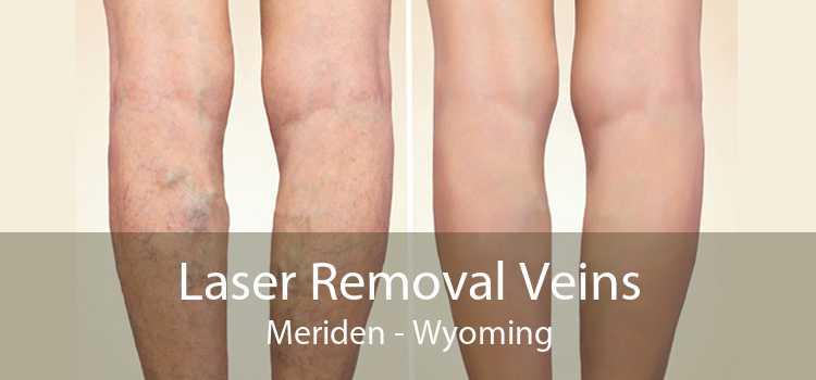Laser Removal Veins Meriden - Wyoming