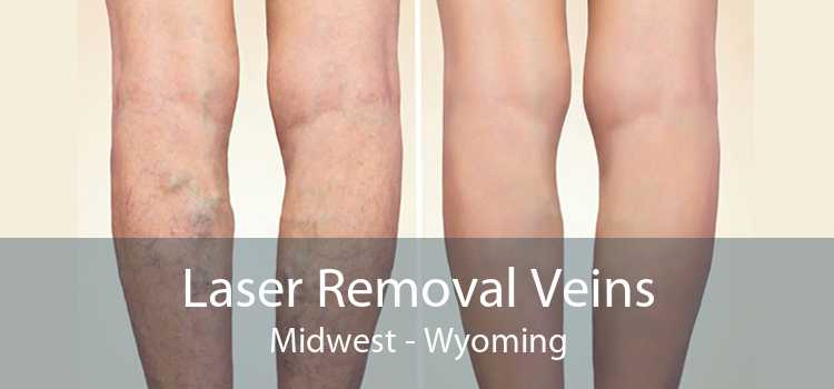 Laser Removal Veins Midwest - Wyoming