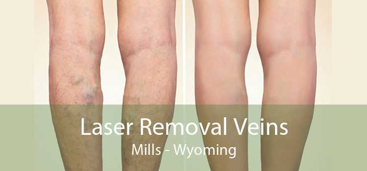 Laser Removal Veins Mills - Wyoming