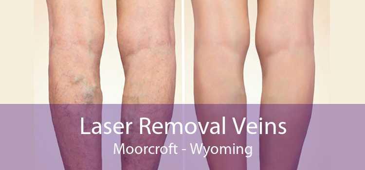 Laser Removal Veins Moorcroft - Wyoming