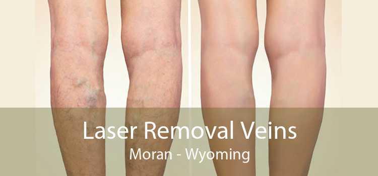 Laser Removal Veins Moran - Wyoming