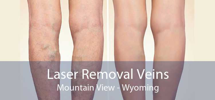 Laser Removal Veins Mountain View - Wyoming
