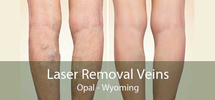 Laser Removal Veins Opal - Wyoming