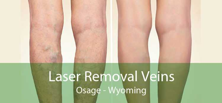 Laser Removal Veins Osage - Wyoming