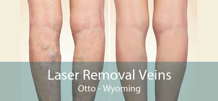 Laser Removal Veins Otto - Wyoming