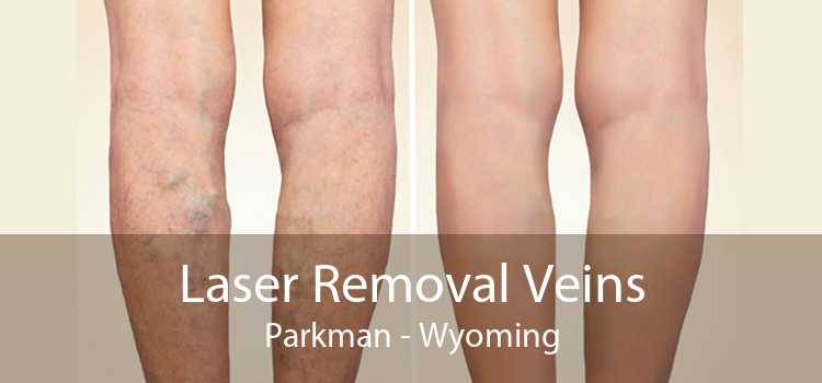 Laser Removal Veins Parkman - Wyoming