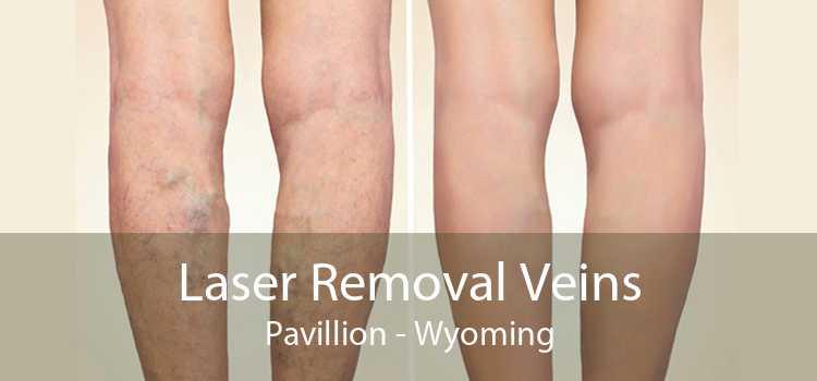 Laser Removal Veins Pavillion - Wyoming