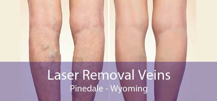 Laser Removal Veins Pinedale - Wyoming