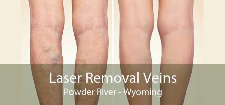 Laser Removal Veins Powder River - Wyoming