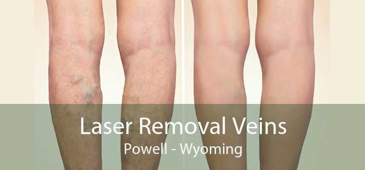 Laser Removal Veins Powell - Wyoming