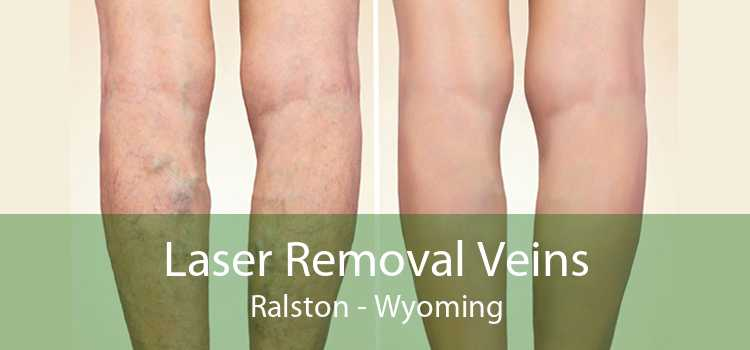 Laser Removal Veins Ralston - Wyoming