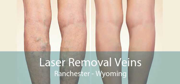 Laser Removal Veins Ranchester - Wyoming