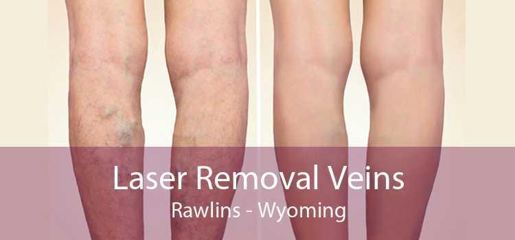 Laser Removal Veins Rawlins - Wyoming