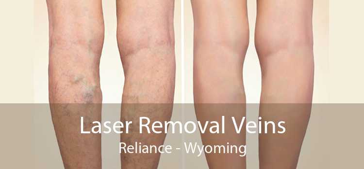 Laser Removal Veins Reliance - Wyoming
