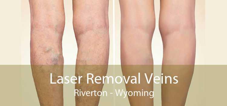 Laser Removal Veins Riverton - Wyoming