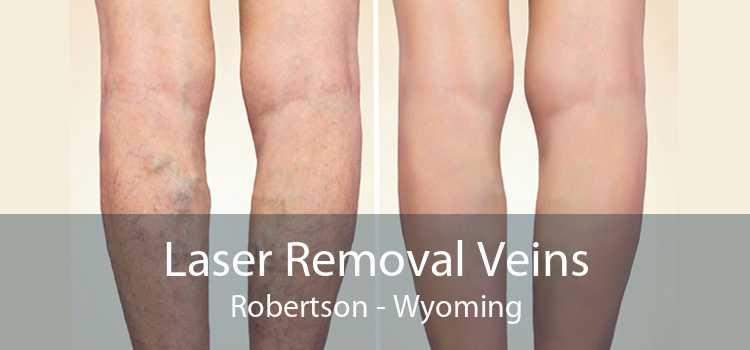 Laser Removal Veins Robertson - Wyoming