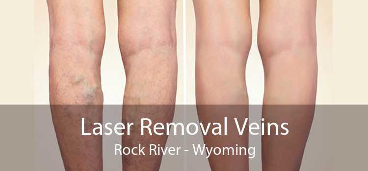 Laser Removal Veins Rock River - Wyoming