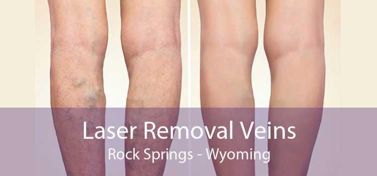 Laser Removal Veins Rock Springs - Wyoming