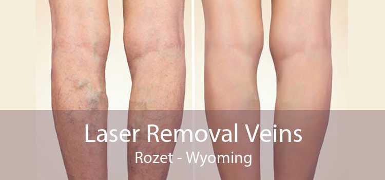 Laser Removal Veins Rozet - Wyoming