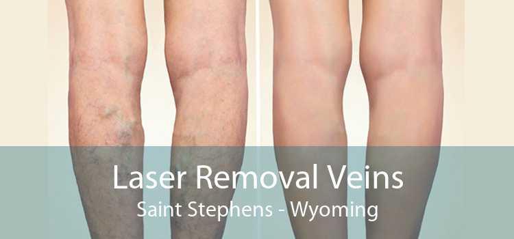 Laser Removal Veins Saint Stephens - Wyoming