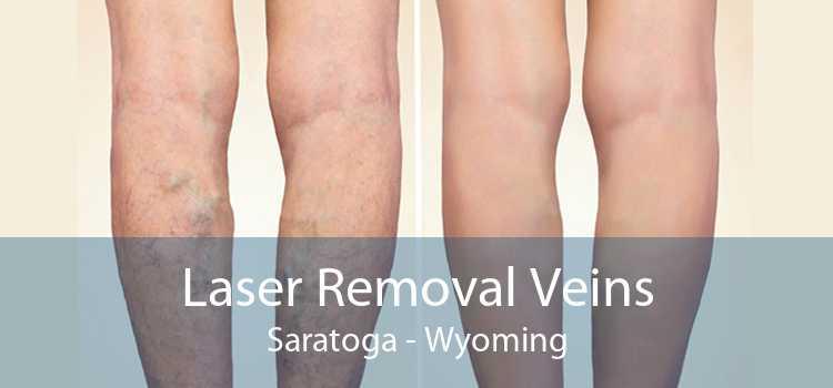 Laser Removal Veins Saratoga - Wyoming