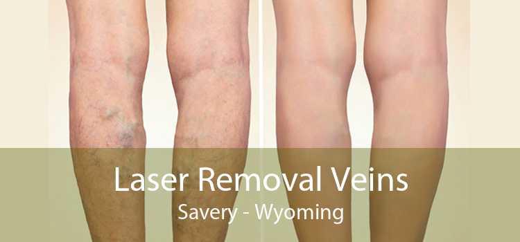 Laser Removal Veins Savery - Wyoming