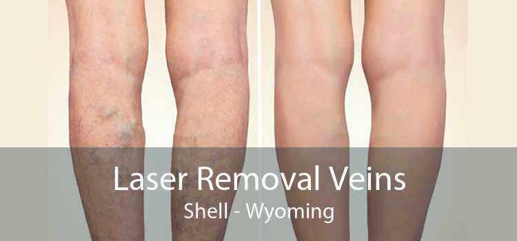 Laser Removal Veins Shell - Wyoming