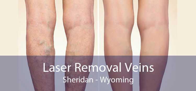 Laser Removal Veins Sheridan - Wyoming