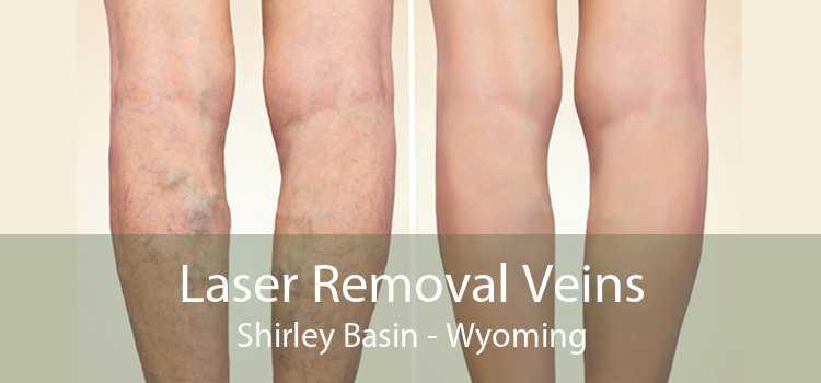 Laser Removal Veins Shirley Basin - Wyoming