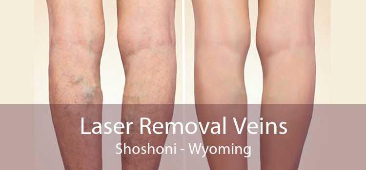 Laser Removal Veins Shoshoni - Wyoming