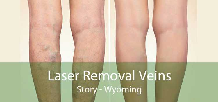 Laser Removal Veins Story - Wyoming