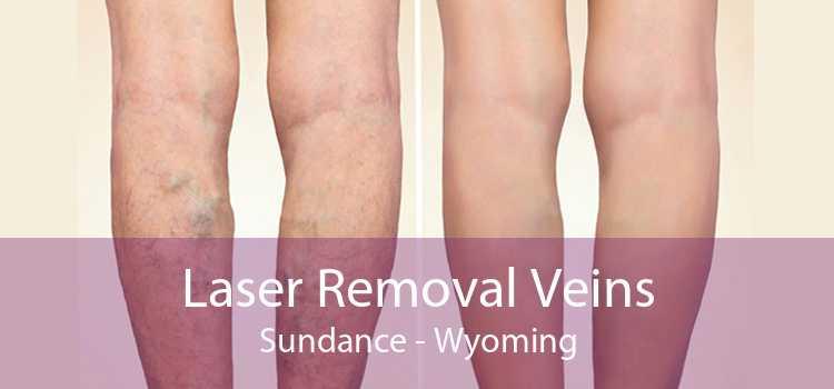 Laser Removal Veins Sundance - Wyoming