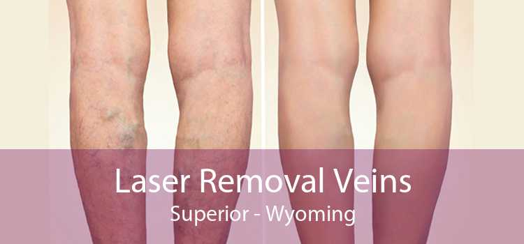 Laser Removal Veins Superior - Wyoming