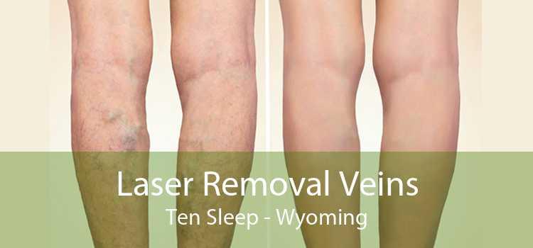 Laser Removal Veins Ten Sleep - Wyoming