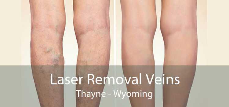 Laser Removal Veins Thayne - Wyoming
