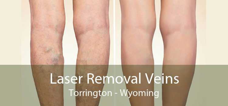 Laser Removal Veins Torrington - Wyoming