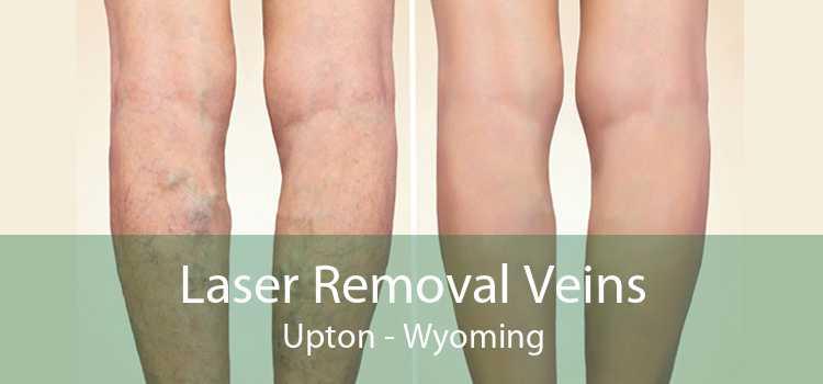 Laser Removal Veins Upton - Wyoming