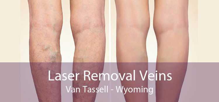 Laser Removal Veins Van Tassell - Wyoming