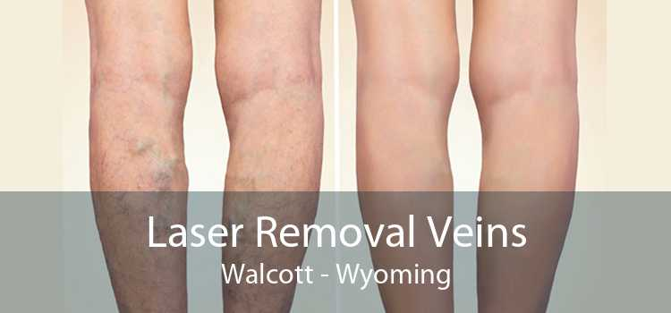 Laser Removal Veins Walcott - Wyoming