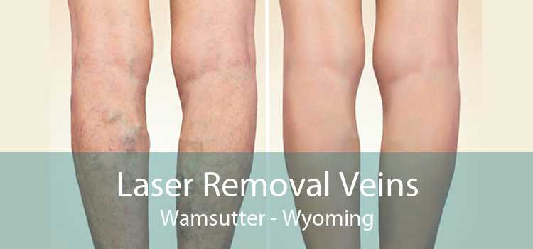 Laser Removal Veins Wamsutter - Wyoming