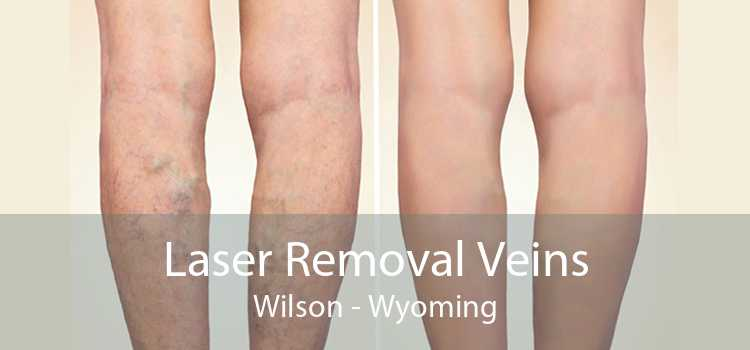 Laser Removal Veins Wilson - Wyoming