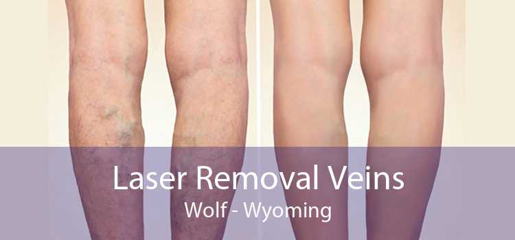 Laser Removal Veins Wolf - Wyoming