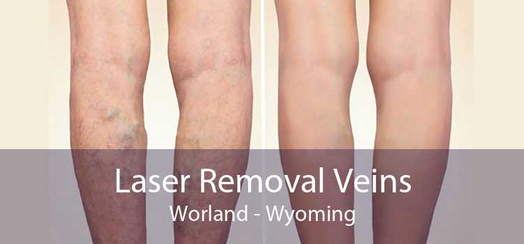 Laser Removal Veins Worland - Wyoming