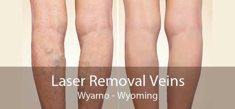 Laser Removal Veins Wyarno - Wyoming