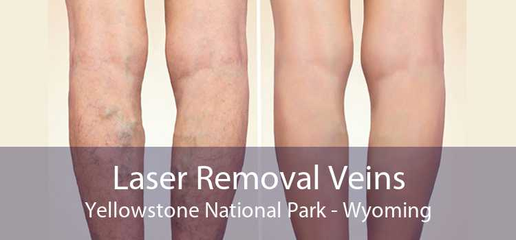 Laser Removal Veins Yellowstone National Park - Wyoming
